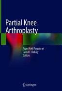 Partial Knee Arthroplasty Book