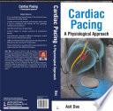 Cardiac Pacing A Physiological Approach Book PDF