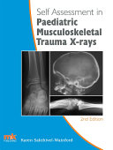 Self assessment in Paediatric Musculoskeletal Trauma X rays