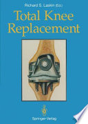 Total Knee Replacement Book PDF