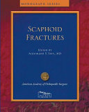 Scaphoid Fractures And Complications Book PDF