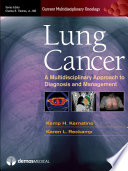 Lung Cancer Book PDF
