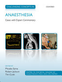 Challenging Concepts in Anaesthesia Pdf/ePub eBook