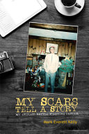 My Scars Tell a Story