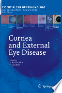 Cornea And External Eye Disease Book PDF