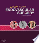 Endovascular Surgery E Book Book