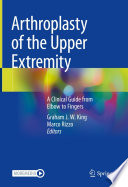 Arthroplasty of the Upper Extremity