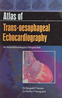 Atlas of Trans oesophageal Echocardiography Book