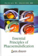 Essential Principles of Phacoemulsification