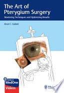 The Art of Pterygium Surgery
