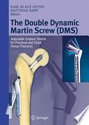 The Double Dynamic Martin Screw  DMS