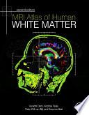MRI Atlas of Human White Matter