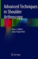 Advanced Techniques in Shoulder Arthroscopy