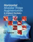 Horizontal Alveolar Ridge Augmentation in Implant Dentistry Pdf/ePub eBook