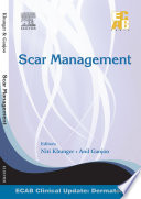 Scar Management   ECAB