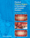 Practical Osseous Surgery in Periodontics and Implant Dentistry Pdf/ePub eBook
