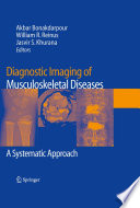 Diagnostic Imaging Of Musculoskeletal Diseases Book PDF
