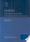 Smith s Recognizable Patterns of Human Malformation Book