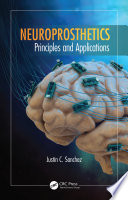 Neuroprosthetics