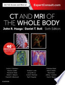 Computed Tomography   Magnetic Resonance Imaging Of The Whole Body E Book