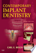 """Contemporary Implant Dentistry E-Book"" by Carl E. Misch"