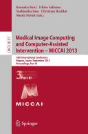Medical Image Computing and Computer-Assisted Intervention -- MICCAI 2013