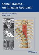 Spinal Trauma   An Imaging Approach