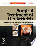 Surgical Treatment Of Hip Arthritis Reconstruction Replacement And Revision E Book Book PDF