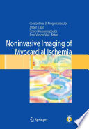 Noninvasive Imaging Of Myocardial Ischemia Book PDF