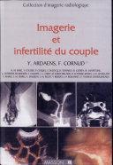 Imagerie et infertilité du couple