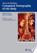 Spiral and Multislice Computed Tomography of the Body Book