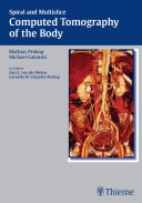 Spiral and Multislice Computed Tomography of the Body [Pdf/ePub] eBook