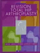 Revision Total Hip Arthroplasty