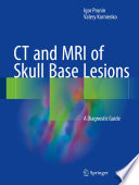 CT and MRI of Skull Base Lesions