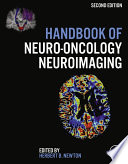 Handbook of Neuro Oncology Neuroimaging Book