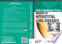 Clinico Radiological Series  Imaging of Interstitial Lung Diseases