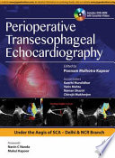 Perioperative Transeasophageal Echocardiography