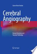 Cerebral Angiography