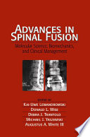 Advances in Spinal Fusion