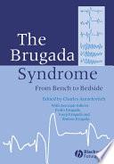 The Brugada Syndrome