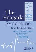 The Brugada Syndrome Book