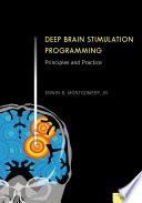 Deep Brain Stimulation Programming