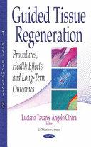 Guided Tissue Regeneration