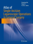 Atlas of Single Incision Laparoscopic Operations in General Surgery
