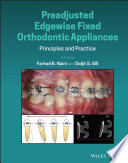 Preadjusted Edgewise Fixed Orthodontic Appliances