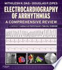 Electrocardiography of Arrhythmias  A Comprehensive Review E Book