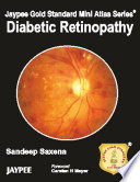 Jaypee Gold Standard Mini Atlas Series®: Diabetic Retinopathy