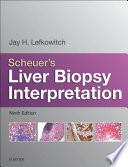 Scheuer s Liver Biopsy Interpretation E Book