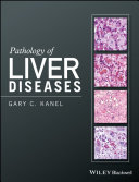Pathology of Liver Diseases