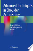 Advanced Techniques in Shoulder Arthroscopy